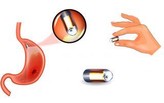 Capsule Endoscopy (Inpatients)
