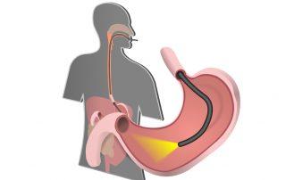 Endoscopy (UGI Endoscopy)