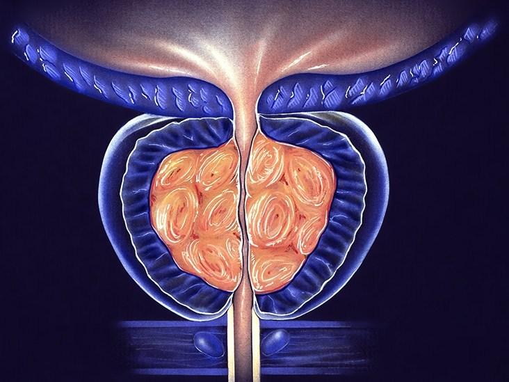 Prostatitis - urologist in kolkata