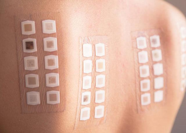 Allergy-Skin-Test