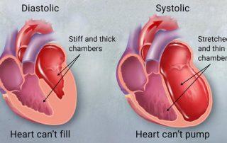 Heart Failure-cardiologist kolkata