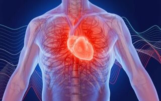 Cardiac Causes of Palpitation