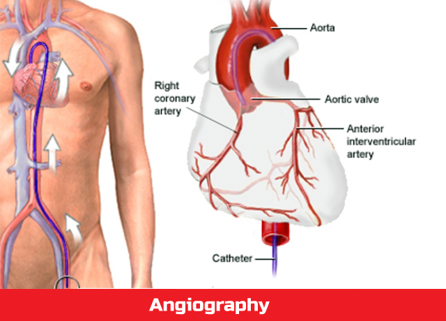 Angiography