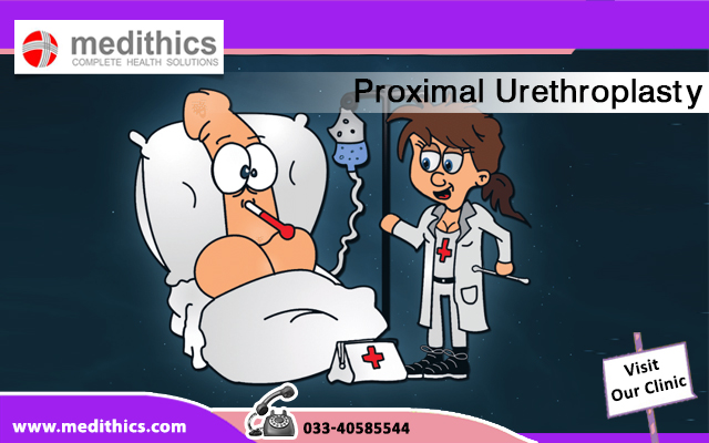 Proximal Urethroplasty