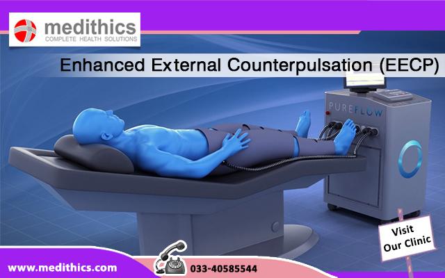 Enhanced External Counterpulsation (EECP)