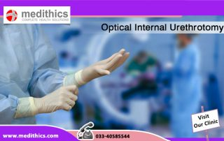 Optical Internal Urethrotomy