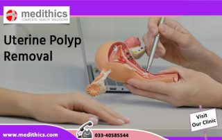 Uterine Polyp Removal