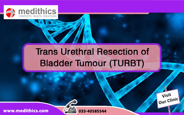 Trans Urethral Resection of Bladder Tumour (TURBT)