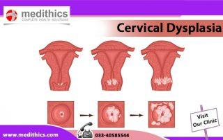 Cervical Dysplasia